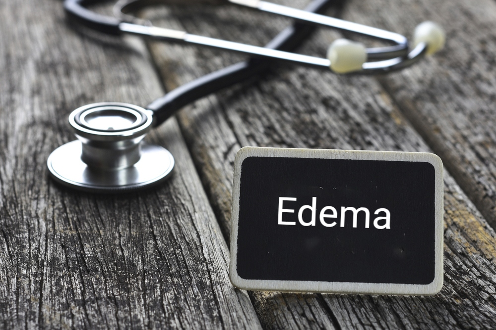 10 Symptoms and Treatments of Edema - Facty Health